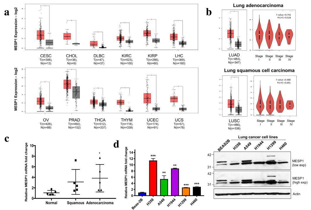 文献解读:泛癌-单基因分析-sci666