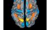 Brain Research影响因子3分的不收费老牌期刊