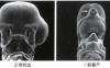 《癌生物学》第十六章(3)肿瘤的合理治疗(下)