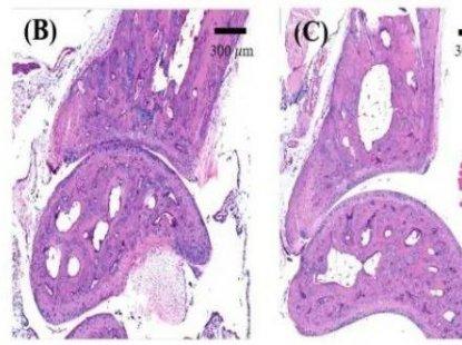 蛋白质组学+代谢组学揭示艾灸对强直性脊柱炎小鼠的作用机制