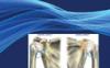 美国神经学期刊Neuromodulation影响因子4分 接收快 不收版面费
